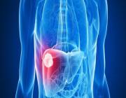 اكتشاف عقار جديد قد يغني مرضى تليف الكبد عن الحاجة لعملية زراعة