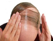 عطر طبيعي يمنع تساقط الشعر