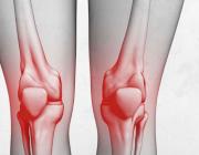 مشكلة شائعة في «الركبة».. السبب والأعراض وطريقة العلاج