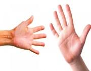 10 أسباب لجفاف جسم الإنسان.. تعرف عليها