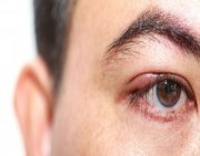 لا تتجاهل اضطراب حركة جفن العين.. لهذا السبب