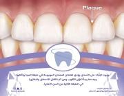 استشاري يوضح خطورة طبقة «البلاك» على الأسنان