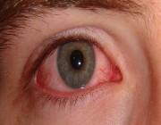 6 أسباب رئيسية لتهيج العين.. عليك تجنبها