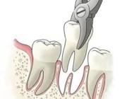 هل يمكن خلع الأسنان أو علاجها أثناء الحمل؟