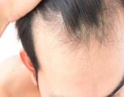 وداعا للصلع.. اكتشاف سبب توقف نمو الشعر مع تقدم العمر!