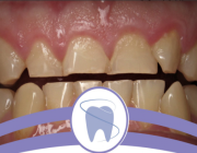 استشاري: 4 أعراض لمشكلة «طحن الأسنان»