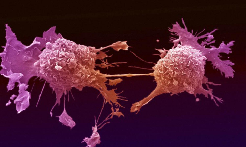 اكتشاف نوع من «السكر» يقضي على الخلايا السرطانية