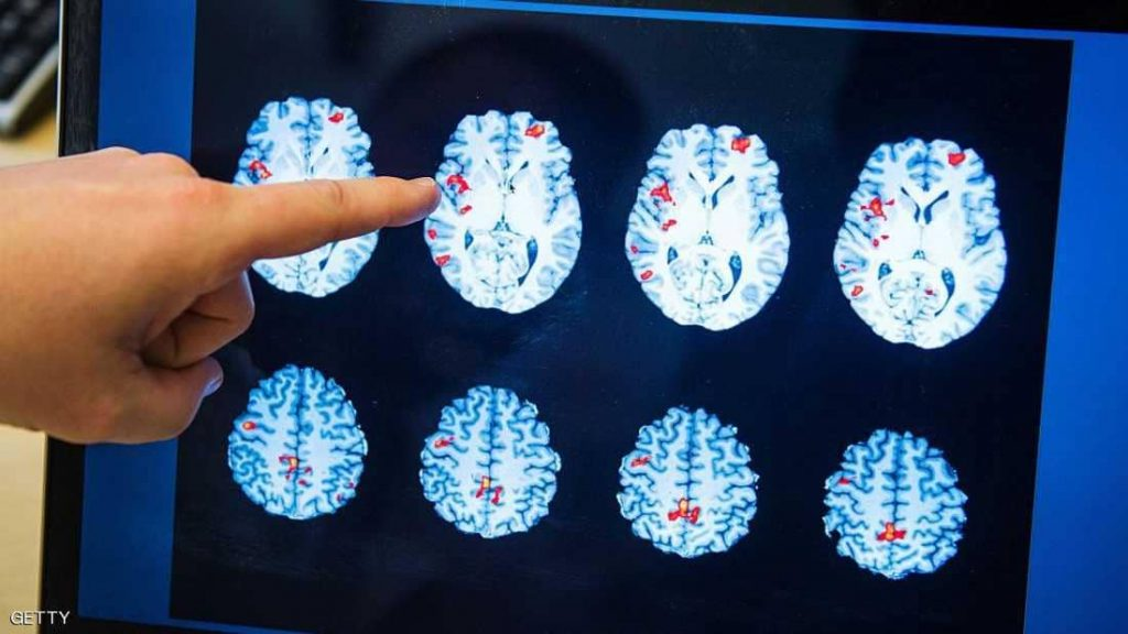 الكشف عن موعد توفير علاج يقضي على الزهايمر