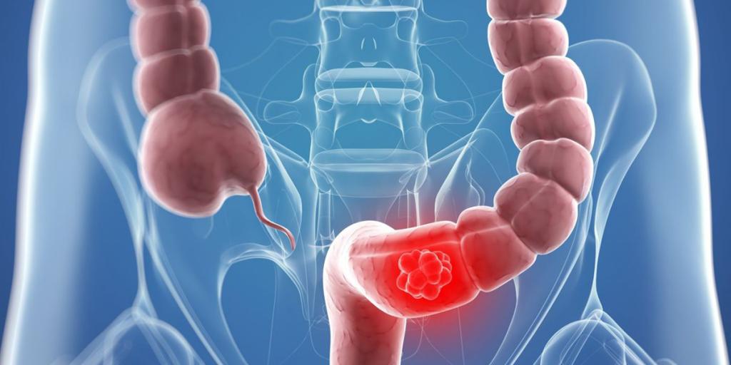 إليكم 4 أعراض للإصابة بسرطان الأمعاء .. بينها ألم في البطن